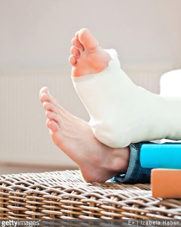 Les entorses les plus graves peuvent nécesité la pose d'un plâtre ou d'une attelle, afin d'immobilier l'articulation blessée.